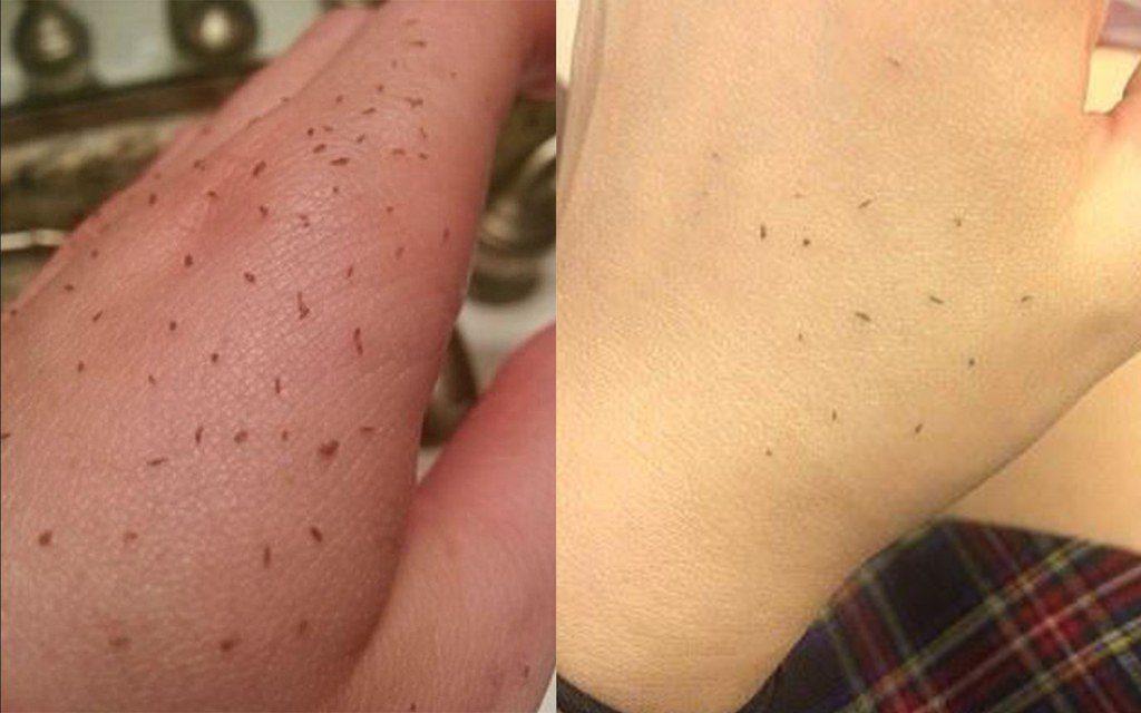 Punti neri e Skin Gritting
